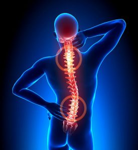 Back Pain spine visual