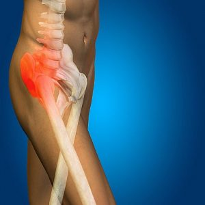 hip and groin pain treatment