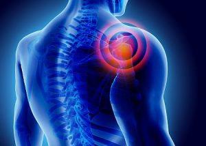 Shoulder pain treatment image