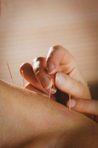 3915-acupuncture42407741_m