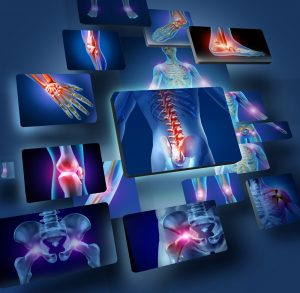 Physiotherapy Treatment pain highlighted