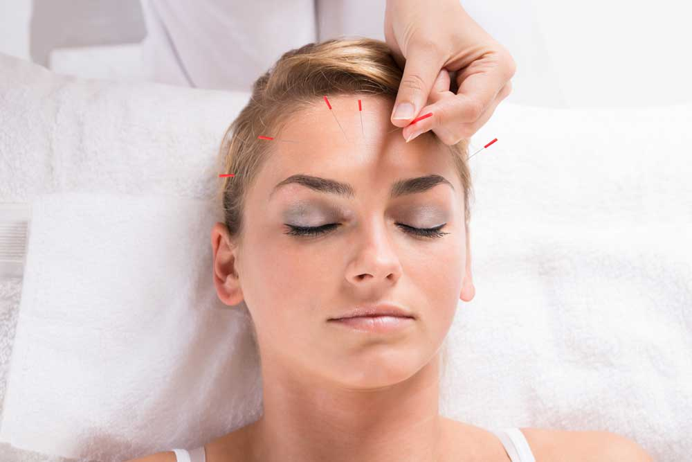 Faye Pattison Physiotherapy - Cosmetic / Facial Acupuncture