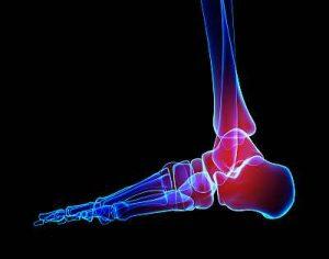 Pain in heel and achilles