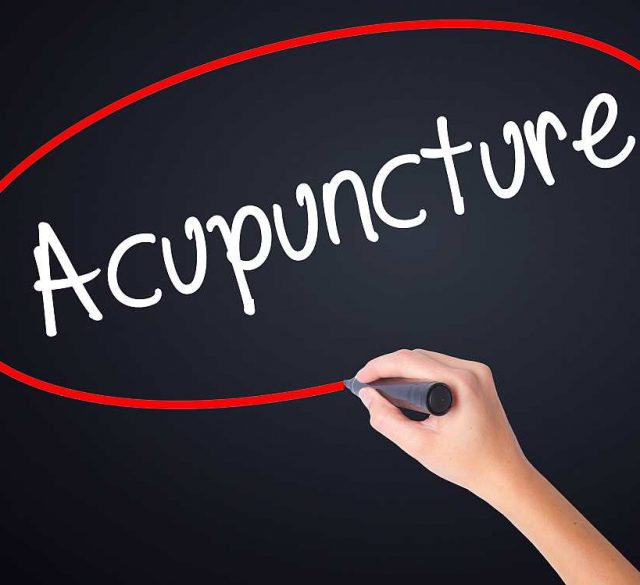 Acupunture Physiotherapy