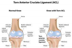 ACL Injury Faye Pattison Physiotherapy Chelmsford