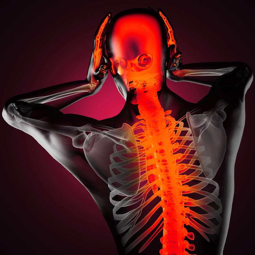 Headache radiated up spine causing migraines