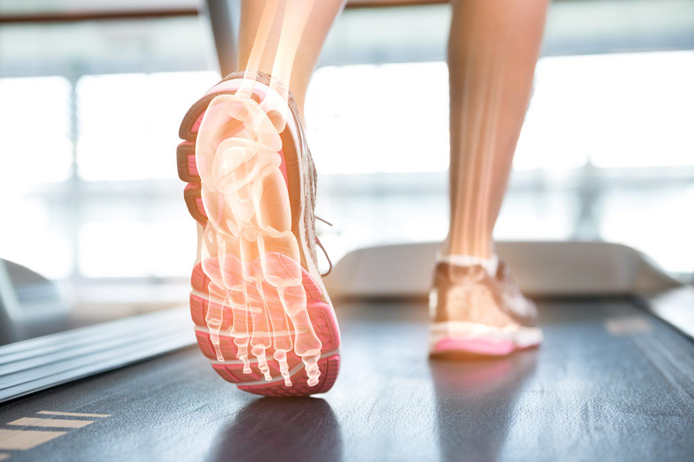Plantar fasciitis treatment chelmsford