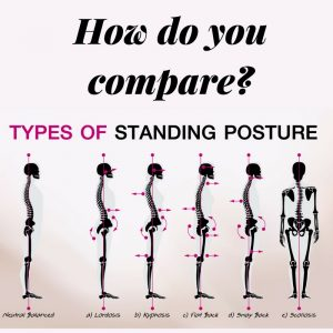 Biomechanics of different standing positions