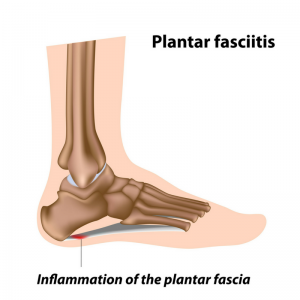 Inflamed Plantar Fascia