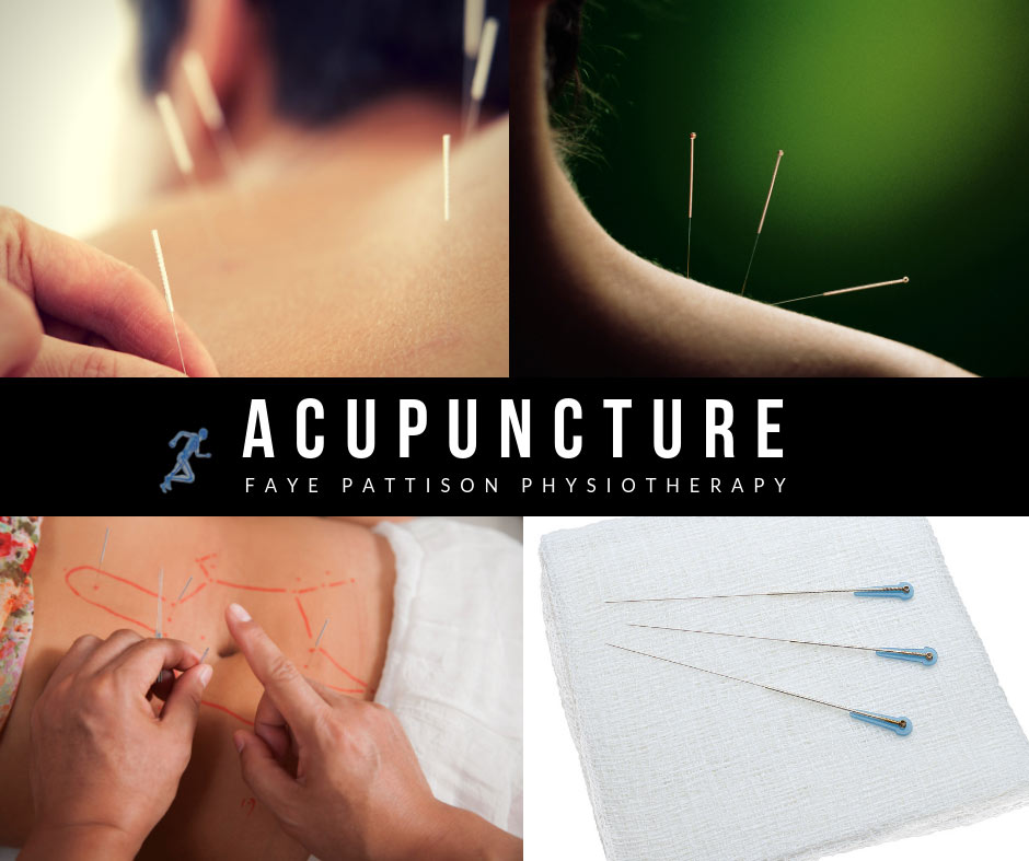 Chelmsford Acupuncture